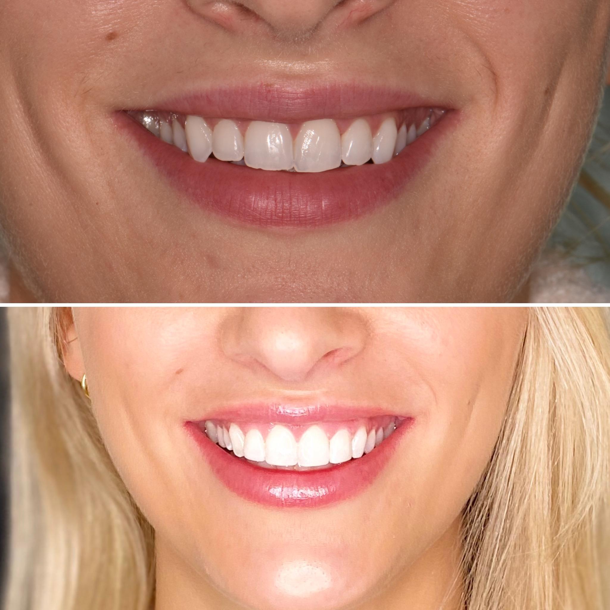 best teeth bonding belfast